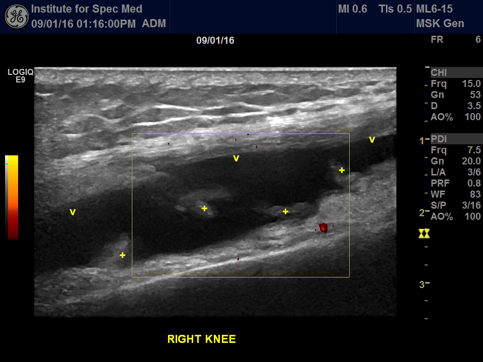 Lyme disease ultrasound of the knee