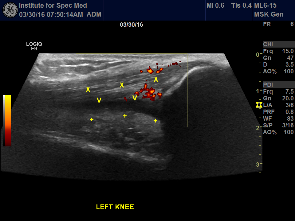 suprapatellar compartment