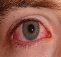 keratitis associated lyme disease