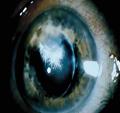 crystalline keratopathy