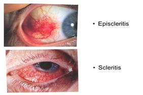 episcleritis_scleritis