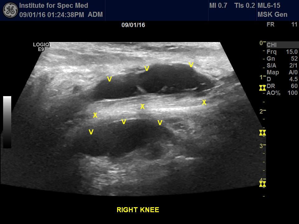 popliteal cyst from lyme disease